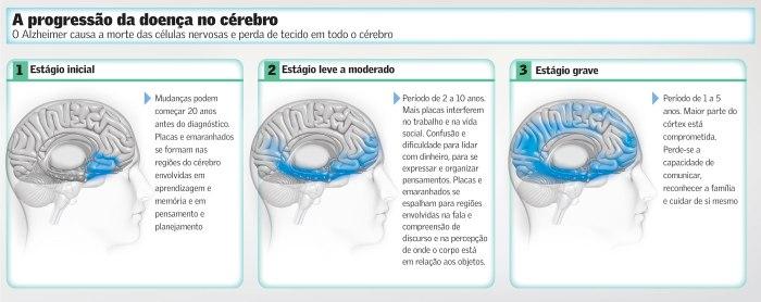 Progressão de Alzheimer no Cérebro
